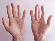 Hands of an man with Dupuytren contracture Stock Image