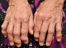 Hands of an old woman Royalty Free Stock Photos