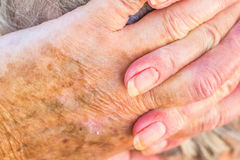Hands of old woman with skin problems. Hands of an elderly woman with eczema or allergic skin problems royalty free stock photo