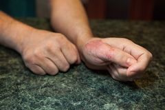 Hands with psoriasis or eczema, symptom of skin sickness - medical concept Royalty Free Stock Images