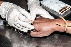Hands of quack doctor use syringe injections to the patient hand Stock Image