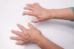 Hands With Rheumatoid Arthritis. Hands Of Woman Deformed From Rheumatoid Arthritis Stock Photos