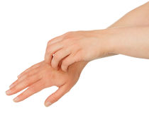 Hands scratching skin Royalty Free Stock Photo