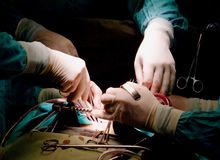 Hands of surgeons Stock Photo