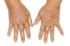 Hands swollen from diabetes. Two hands place compared to see the difference from a woman who is high blood sugar, Hand swollen from diabetes, on white background Stock Photo