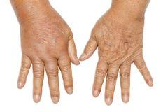 Hands swollen from diabetes Stock Photo