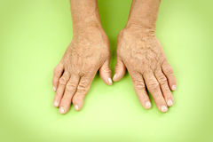 Hands Of Woman Deformed From Rheumatoid Arthritis Royalty Free Stock Photos