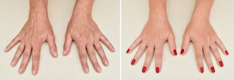 Hands of a woman before and after manicure and skin treatment royalty free stock images