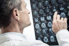Handsome professional neurologist studying X ray scan. X ray scan. Nice handsome professional neurologist looking at the X ray scan and studying it while doing stock photo