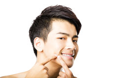 Handsome young man Squeezing pimple Royalty Free Stock Photo