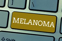 Handwriting text Melanoma. Concept meaning A malignant tumor associated with skin cancer Benign moles stock photos