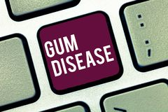 Handwriting text writing Gum Disease. Concept meaning Inflammation of the soft tissue Gingivitis Periodontitis stock illustration