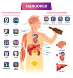 Hangover vector illustration. Labeled alcohol sickness explanation scheme. Medical booze overdose symptoms and components diagram. Ethanol drink health royalty free illustration