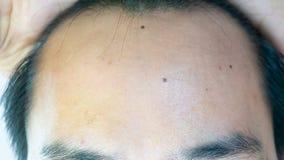 Hans huvudhår har problem som ingen nob blir skallig royaltyfri fotografi