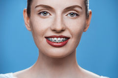 Happy beautiful girl with braces Royalty Free Stock Photos