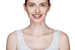 Happy beautiful girl with braces Stock Images