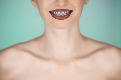Happy beautiful girl with braces Stock Photo