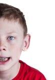 Happy Boy with braces. A Happy boy wearing braces on white background Royalty Free Stock Photo