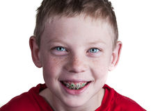 Happy Boy with braces. A Happy boy wearing braces on white background Royalty Free Stock Photography