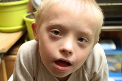 Defect,childcare,medicine and people concept. Happy boy with down syndrome after eating chocolate stock photography
