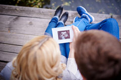 Happy couple are holding ultrasound scan of their baby Royalty Free Stock Photos