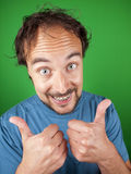 Happy man with braces putting his thumbs up for you Stock Photography