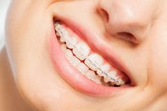 Happy smile of young woman with dental braces. Happy smile of young woman with clear dental braces royalty free stock photos