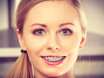 Happy smiling blonde woman having braces Stock Photo
