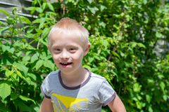 Defect,childcare,medicine and people concept. Happy and smiling boy with down syndrome while playing in the garden royalty free stock photos