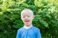 Defect,childcare,medicine and people concept. Happy and smiling boy with down syndrome poses for a portrait outdoors stock image