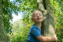 Defect,childcare,medicine and people concept. Happy and smiling boy with down syndrome poses for a portrait outdoors royalty free stock photo