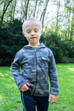Defect,childcare,medicine and people concept. Happy and smiling boy with down syndrome poses for a portrait outdoors stock photos