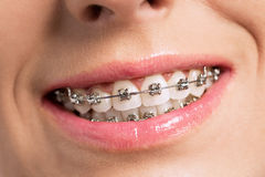 Happy success smile with perfect teeth and braces Stock Images