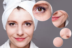 Happy woman after beauty treatment - before/after shots - skin c Stock Photo