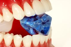 Hard Enamel. Teeth Biting Down on a Blue Stone Stock Images