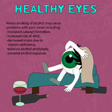 Harm to drinking to eye health. Infographics problems due to excessive use of alcohol - vector, EPS10 Royalty Free Stock Photo