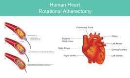 Hart Diamond Angioplasty Illustratie Infographic stock illustratie