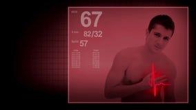 Hartaanval met electrocardiogramteken stock footage
