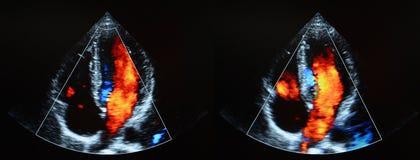 Hartultrasone klank - echocardiografie Stock Afbeelding