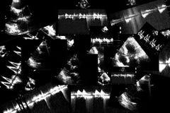 Hartultrasone klankbeelden Doppler-echo stock fotografie