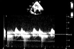 Hartultrasone klankbeelden Doppler-echo royalty-vrije stock fotografie