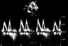 Hartultrasone klankbeelden Doppler-echo stock afbeelding