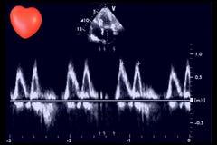 Hartultrasone klankbeelden en klein hart Doppler-echo stock afbeelding