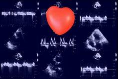 Hartultrasone klankbeelden en klein hart Doppler-echo stock foto