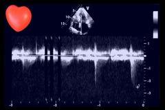 Hartultrasone klankbeelden en klein hart Doppler-echo royalty-vrije stock afbeelding