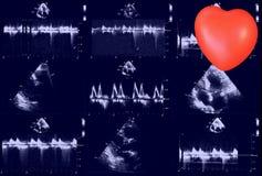 Hartultrasone klankbeelden en klein hart Doppler-echo royalty-vrije stock foto