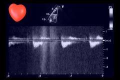 Hartultrasone klankbeelden en klein hart Doppler-echo royalty-vrije stock afbeeldingen