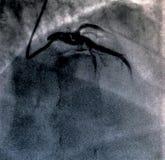 Hartventriculografie Catheteriseren royalty-vrije stock afbeelding