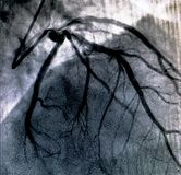 Hartventriculografie Catheteriseren stock afbeeldingen