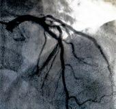 Hartventriculografie Catheteriseren royalty-vrije stock fotografie